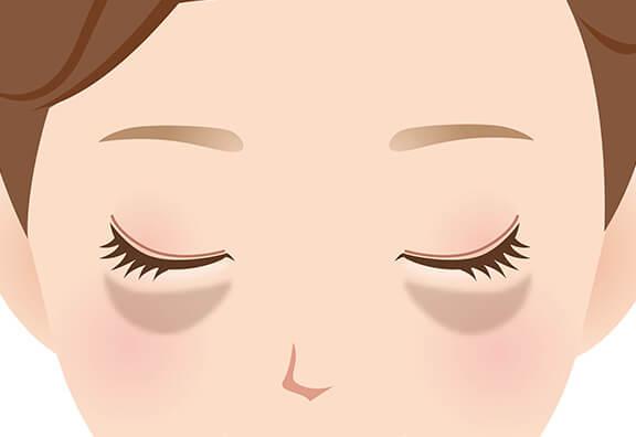 目 の 周り の 色素 沈着
